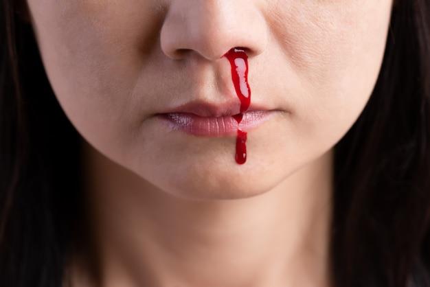 Sangrado nasal, mujer con nariz ensangrentada. cuidado de la salud .