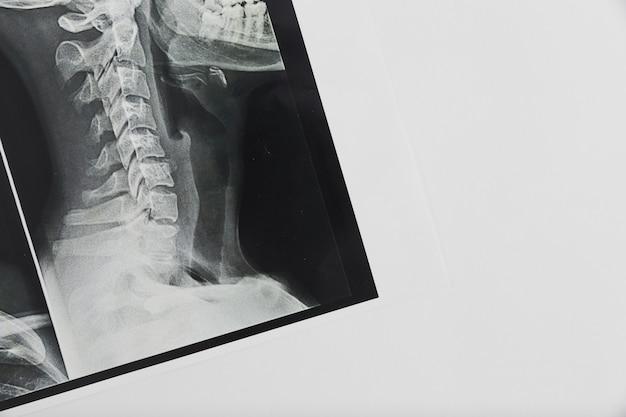 Scan de rayos x
