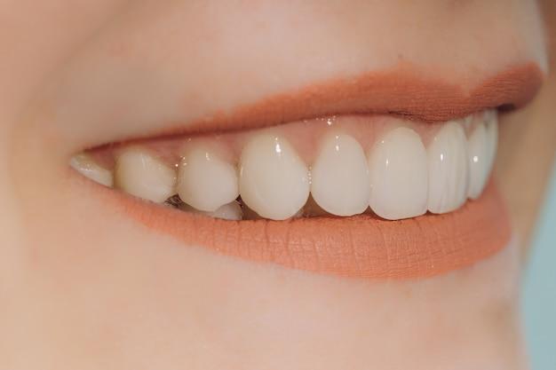 Sonrisa de hollywood con coronas de porcelana y carillas