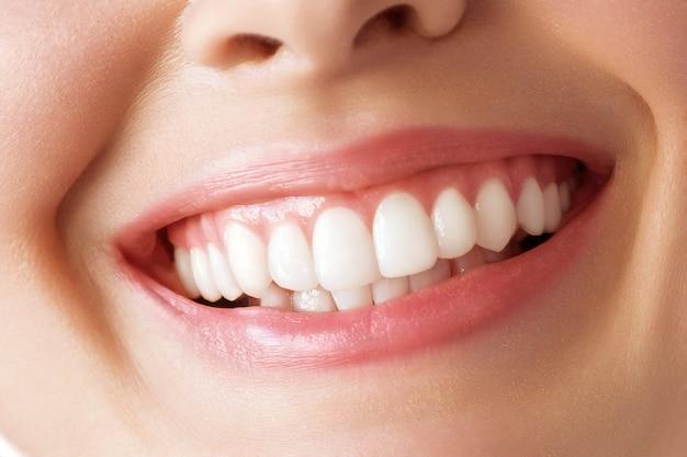 Sonrisa perfecta de dientes sanos de una mujer joven. blanqueamiento dental. cuidado dental, concepto de estomatología.