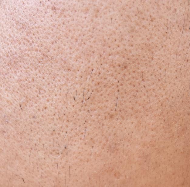 Superficie de piel de hombre asiático cara