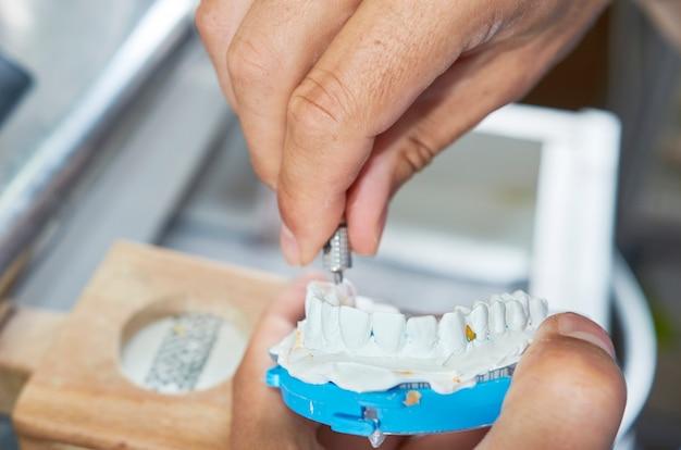 Técnico dental que utiliza un destornillador para fijar implantes dentales de cerámica en su laboratorio.