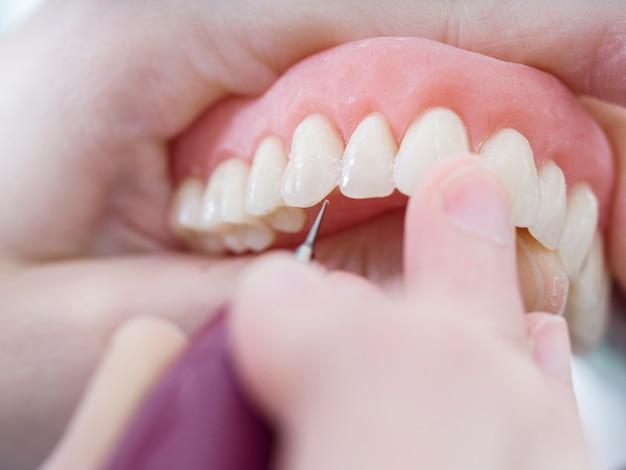 El técnico dental está trabajando con dientes de porcelana en un molde moldeado en un laboratorio dental.