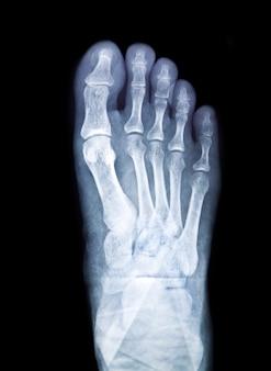 La tecnología de radio de la cirugía de la radiografía de rayos x