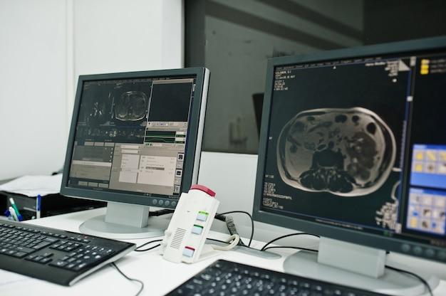 Tema médico. centro de diagnóstico por resonancia magnética en el hospital, monitores de computadora con cerebro humano.