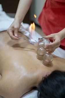 Terapeuta de acupuntura quitando vidrio ahuecado