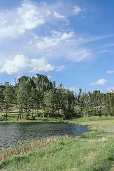 Tiro vertical de un campo de hierba cerca del agua y los árboles con cielo azul