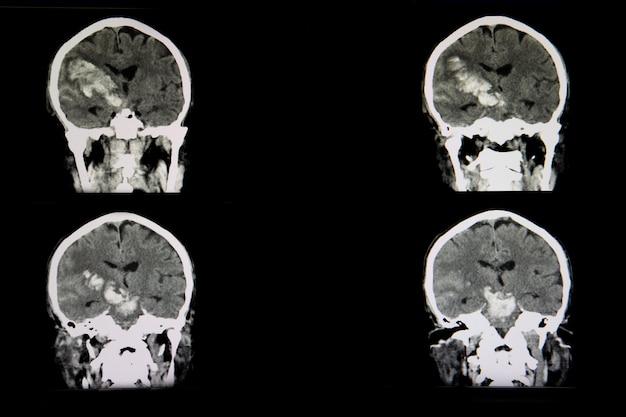 Tomografía computarizada de un brian de un paciente con accidente cerebrovascular hemorrágico agudo
