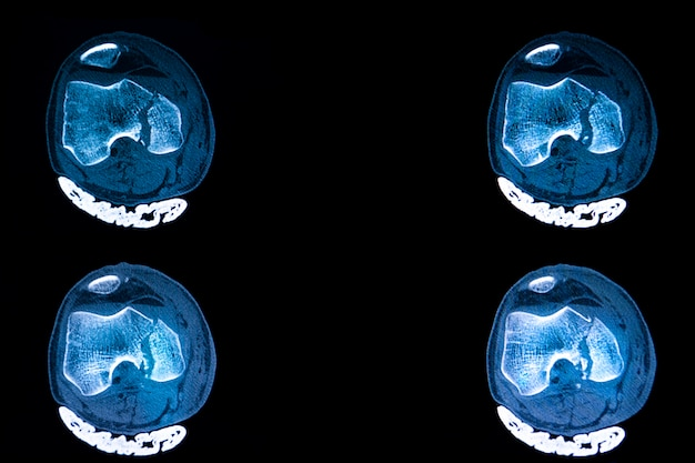 Tomografía computarizada de fractura de meseta tibial de rodilla derecha de un paciente con trauma