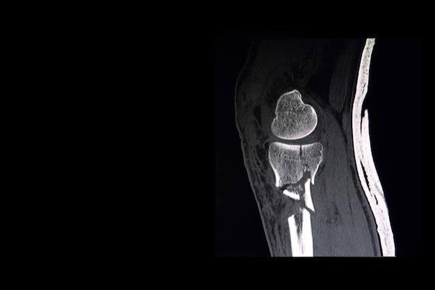 Tomografía computarizada de rodilla