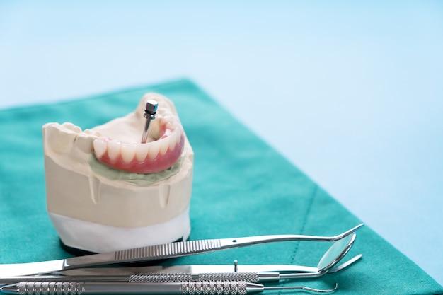 El trabajo del implante dental está terminado y listo para usar / pilar temporal del implante dental