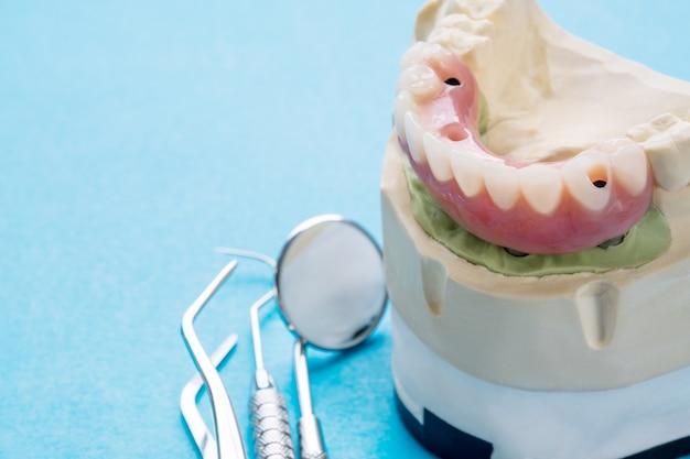 El trabajo de implantes dentales está terminado y listo para usar