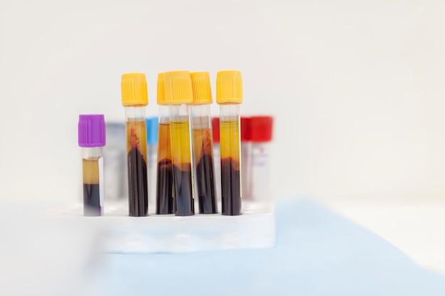 Tubos de ensayo con muestras de sangre real sobre una mesa en un laboratorio.