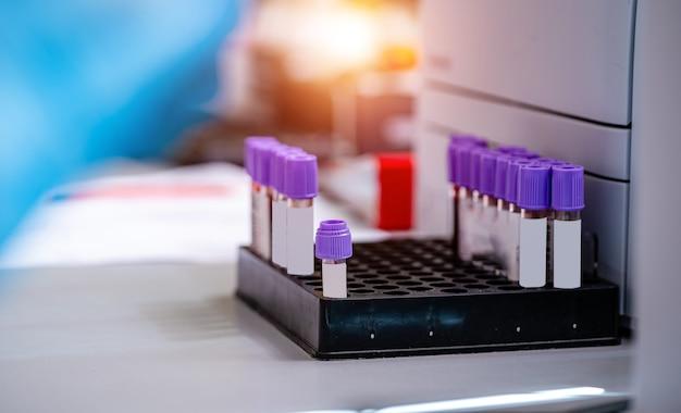 Tubos de ensayo con sangre en una bandeja. laboratorio de sangre. pruebas de enfermedad. pruebas de emergencia. infección vírica. pruebas de neumonía. identificación de covid-19 y coronavirus. pandemia.