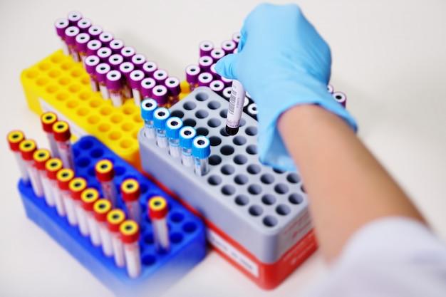 Tubos de prueba médica con análisis de sangre