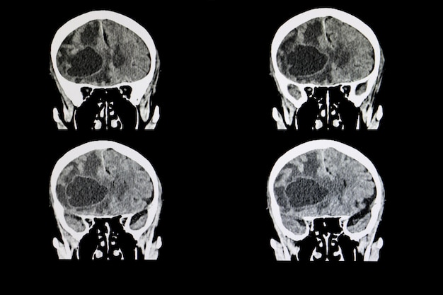 Tumor cerebral metastásico