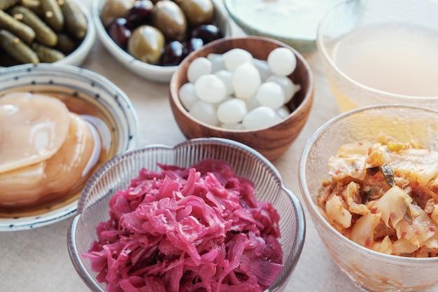Variedad de alimentos probióticos fermentados para la salud intestinal.