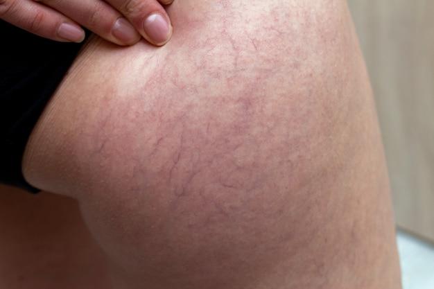 Venas varicosas en una cadera de mujer