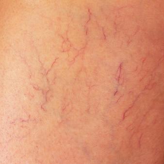 Venas varicosas en el muslo de una mujer de cerca