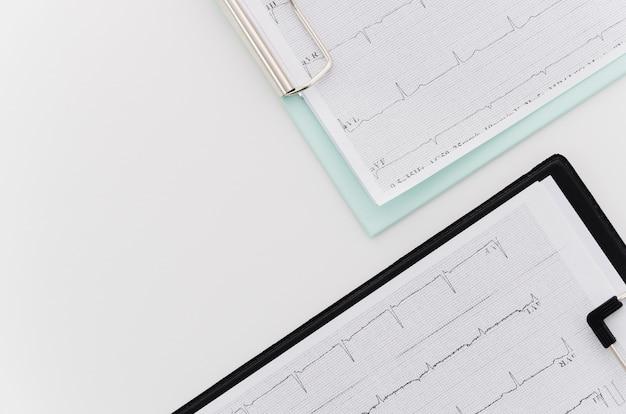 Una vista aérea del informe médico de ecg en el portapapeles azul y negro sobre fondo blanco