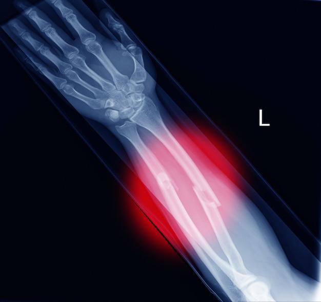 Vista del antebrazo de rayos x (ap) para encontrar fracturas