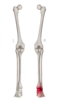 Vista posterior del hueso de la pierna humana con reflejos rojos en el área de la articulación del tobillo de la artritis