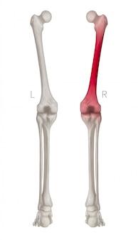 Vista posterior del hueso de la pierna humana con reflejos rojos en el dolor del hueso del fémur, aislado sobre fondo blanco