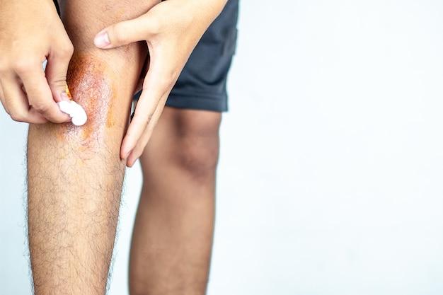 Vista de primer plano de las patas traseras después del accidente, dolor traumático, quemaduras.