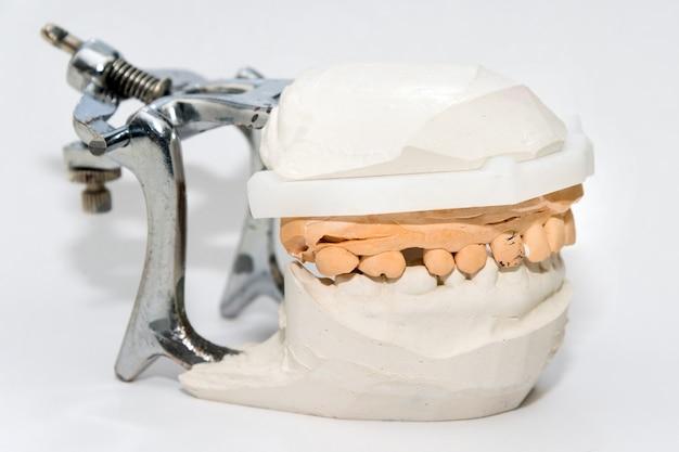 Yeso de mandíbulas. modelo de yeso de fundición dental mandíbulas humanas en laboratorio de prótesis. odontología, ortodoncia. de cerca. enfoque selectivo