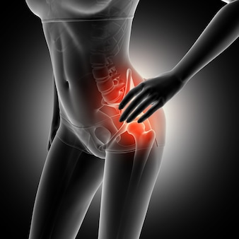 3d rendering di una figura femminile che tiene anca nel dolore con scheletro evidenziato