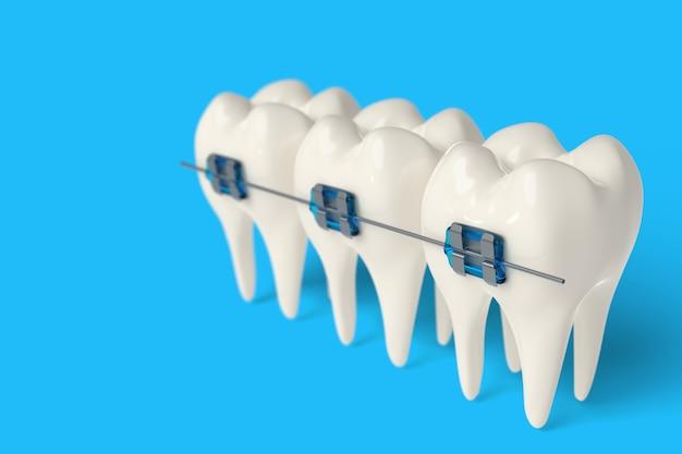 3d rendono il dente con le parentesi graffe di ceramica e di metallo in gomme