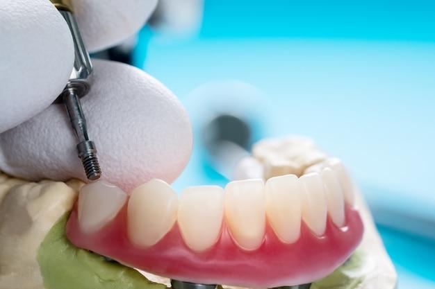 Avvicinamento. gli impianti dentali hanno supportato l'overdenture su sfondo blu
