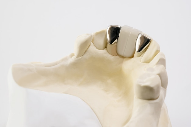 Avvicinamento . ponte dentale di maryland