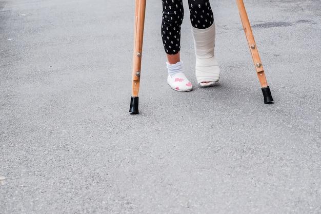 Bambino che usando le stampelle e le gambe rotte per camminare all'aperto, da vicino. gamba rotta, stampelle di legno, infortunio alla caviglia.