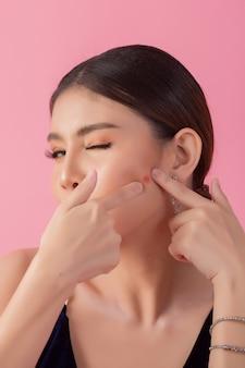 Bella donna faccia con acnee