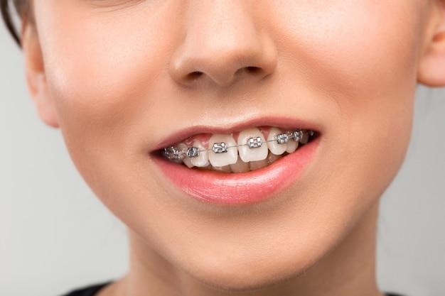 Bella giovane donna con denti parentesi graffe