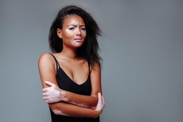 Bella ragazza africana con un problema di pelle che si abbraccia in uno studio con entrambe le mani