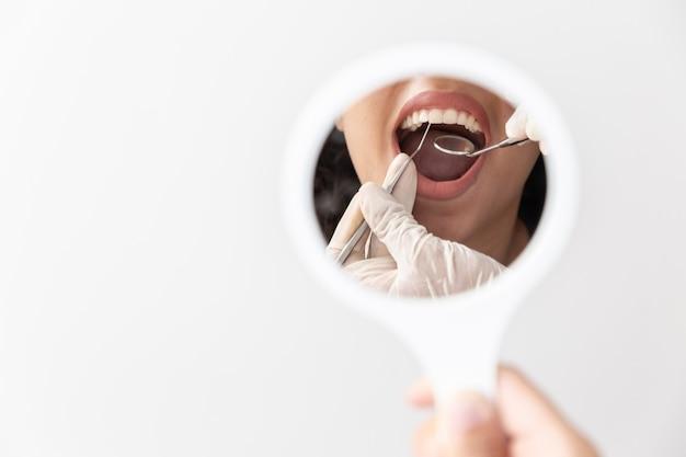 Bocca aperta del paziente durante il controllo orale da parte dello specchio del dentista. avvicinamento.
