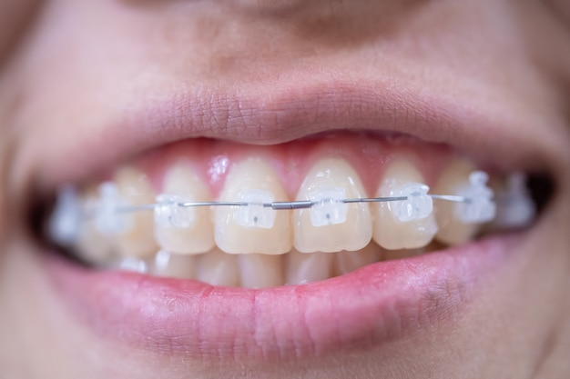 Bocca della giovane donna che sorride con le parentesi graffe bianche e i denti sani