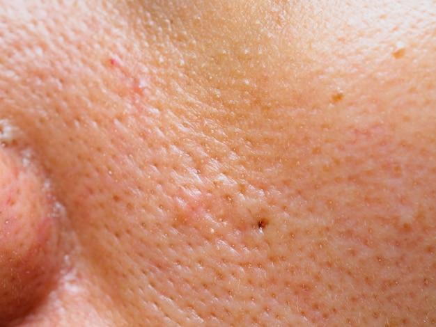 Brufolo e acne sulla pelle del viso, macro zoom.