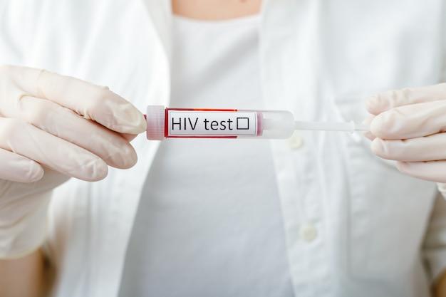 Campione di sangue del test medicale dell'aids dell'hiv in mano dei medici in guanto su priorità bassa bianca