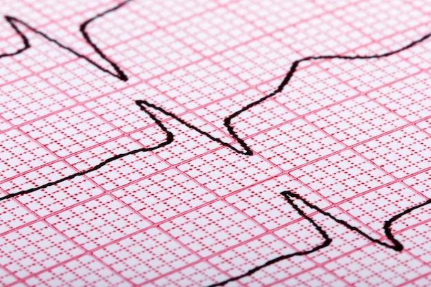 Cardiogramma del battito cardiaco su carta rossa