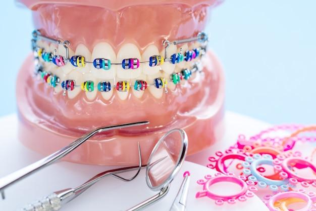 Chiuda sugli strumenti del dentista e sul modello ortodontico - modello dei denti di dimostrazione delle varianti della parentesi ortodontica o del tutore