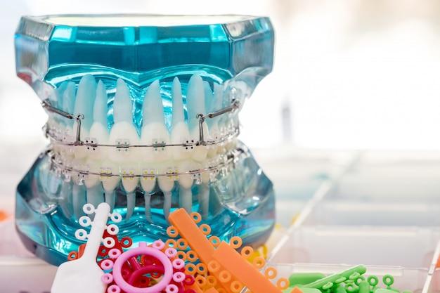 Chiuda sugli strumenti del dentista e sul modello ortodontico