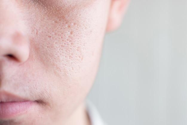 Chiuda sull'immagine del mezzo maschio dell'asia del fronte con il problema di pelle dei pori larghi
