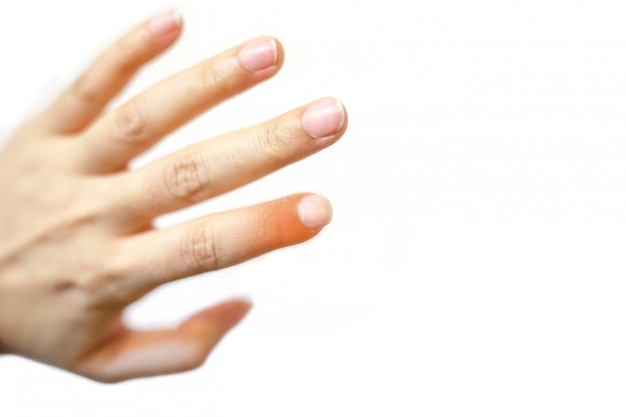 Chiuda sulla giovane bella donna ha dolore in un dito indice sinistro.