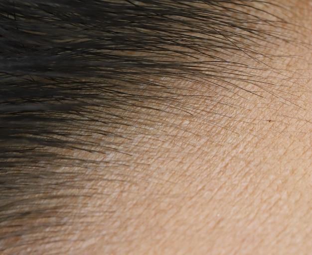 Chiudere la pelle della fronte e dei capelli