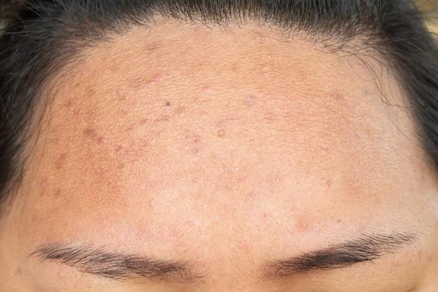 Cicatrice da acne sul viso e problemi di pelle e pori negli adolescenti
