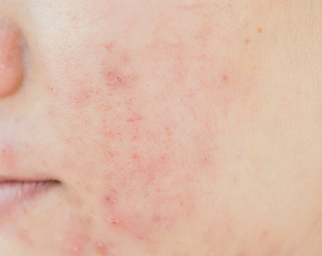 Cicatrice dell'acne sul viso e problemi della pelle