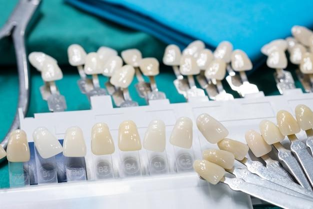Close up guida colori per controllare il colore della corona dentale in clinica.